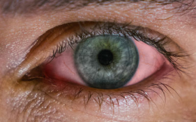 Conjunctivitis Causes and Treatments